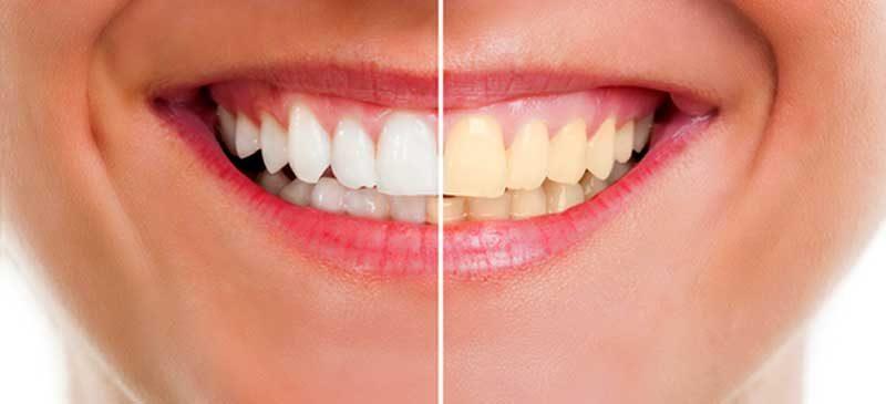 Как и защо да използваме вода за уста за бели зъби
